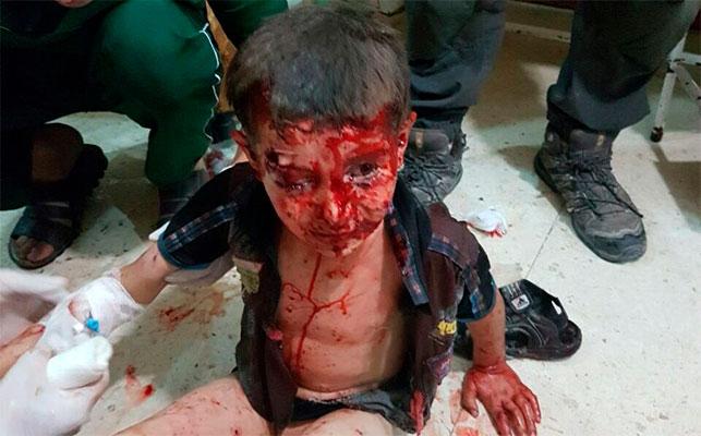 Весь в крови и укрытый пылью: снимок 5-летнего сирийского мальчика после авиаудара по Алеппо всколыхнул Интернет - Цензор.НЕТ 6603